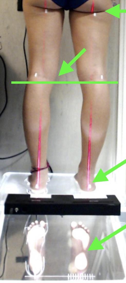 Nella immagine l'analisi della parte adattativa con LED PODO LASER, dalla pianta al bacino