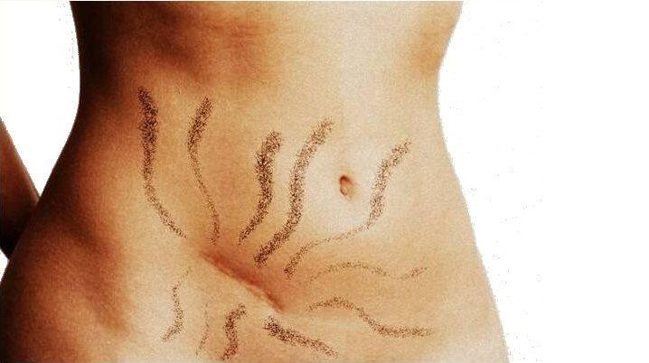 Cicatrici e postura